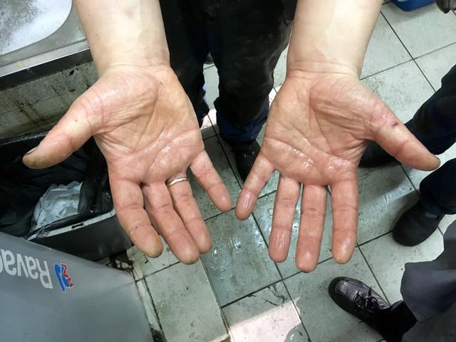 После использования пасты для рук ЛТПК